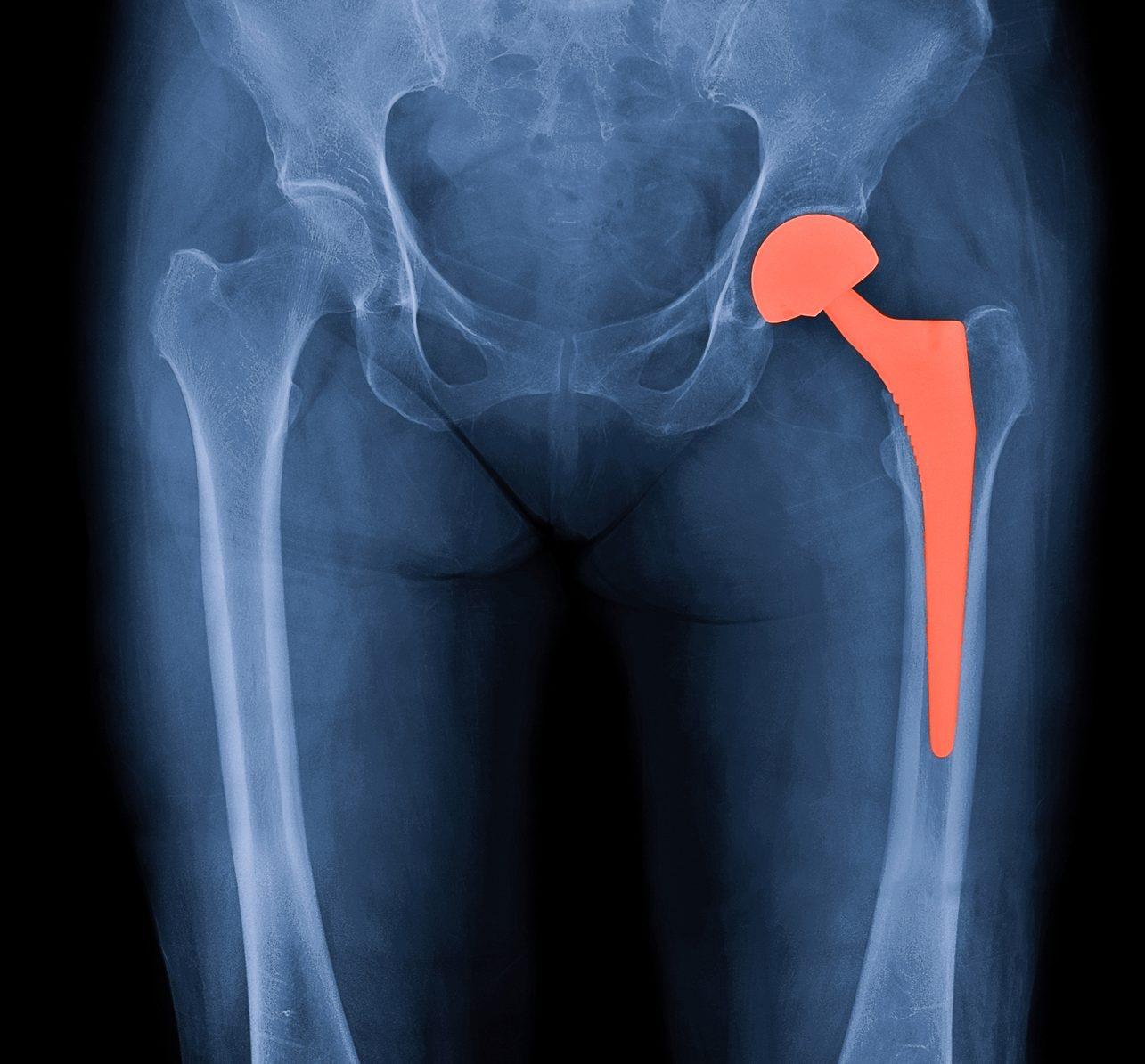 Hip Surgery West Midlands
